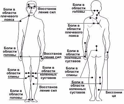 Точечный массаж при артрите, его особенности